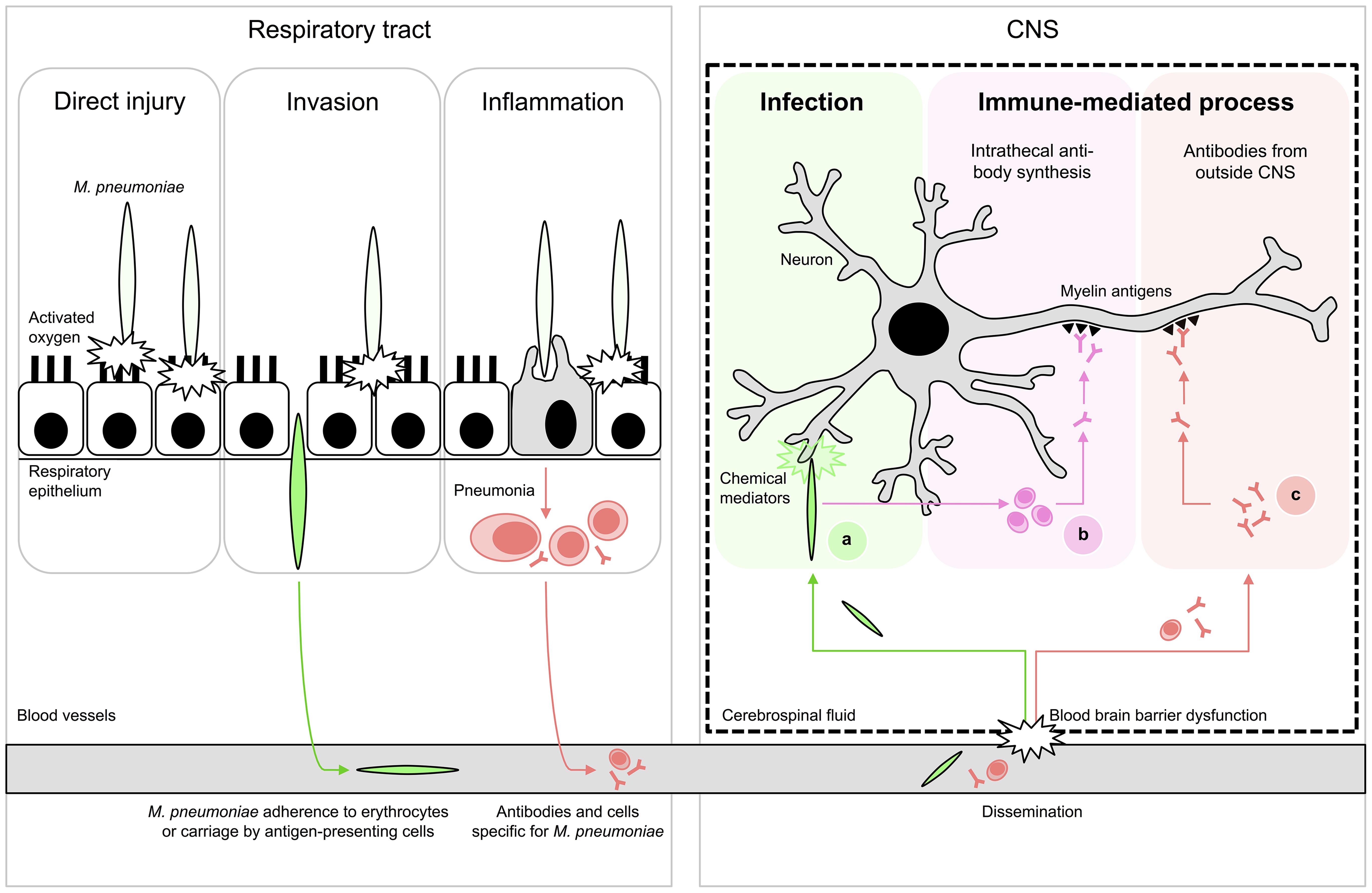 Proposed schematic pathomechanisms in <i>M. pneumoniae</i> encephalitis.