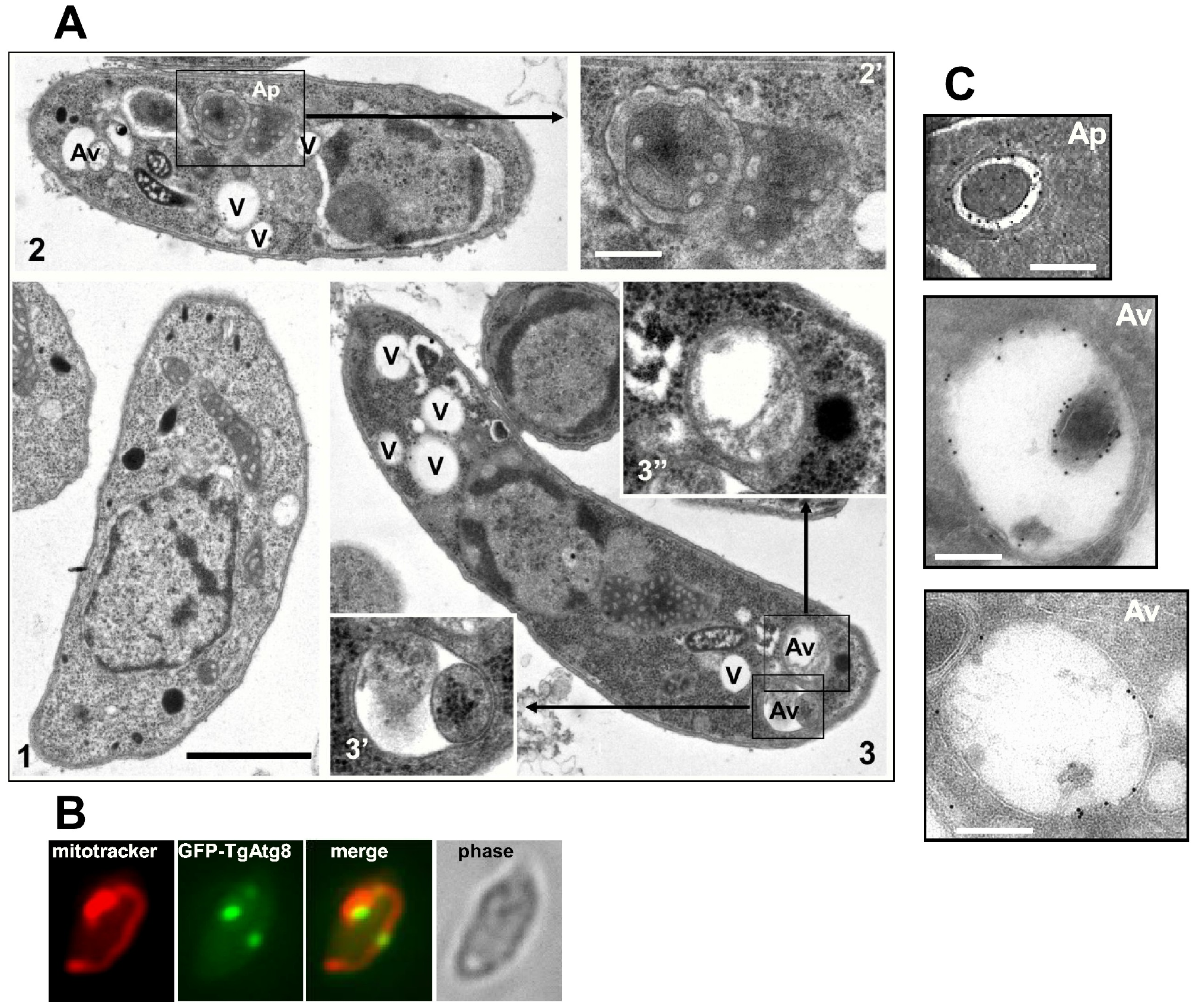 Morphological observation of autophagic vesicles in extracellular tachyzoites by electron microscopy.