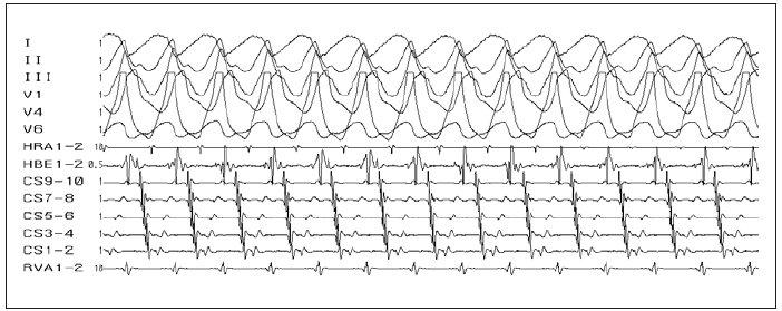 Antidromní AVRT. Širokokomplexová tachykardie (antegrádní vedení přes akcesorní spojku). Lokalizace akcesorní spojky – laterální stěna levé komory (v CS 9–10 – potenciály z ústí koronárního sinu – je větší síňový potenciál vzdálený od menšího komorového potenciálu, zatímco v CS 1–2 – potenciály z oblasti levé volné stěny – je komorový potenciál nejčasnější a je prakticky splynulý se síňovým potenciálem).
