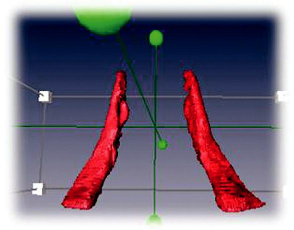 Dorzální pohled na sval m. levator scapulae u tří sledovaných osob v pořadí u fyziologické, lordotické a ploché konfigurace.
