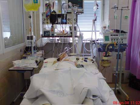 Nemocná na umělé plicní ventilaci.