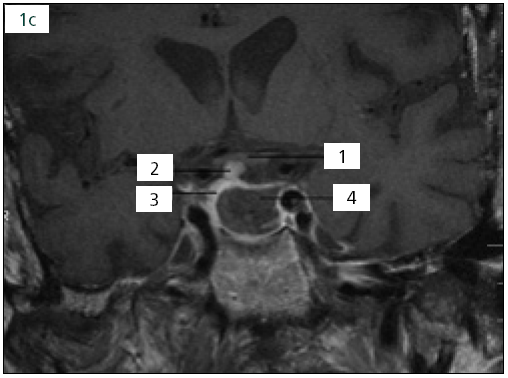Obr. 1c. Po operační MR: 1. chiazma, 2. stopka hypofýzy, 3. v.s. adenohypofýza, 4. resekční dutina.