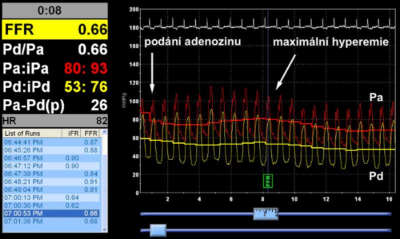 Záznam měření po intrakoronárním podání adenosinu. Hodnota FFR 0.66, ale i nízký poměr klidových tlaků Pd/Pa ještě před navozením hyperemie svědčí pro jasně významnou stenózu.