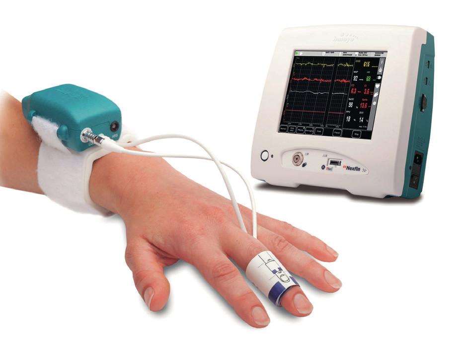 Přístroj ccNexfin (vyobrazení poskytnuto výrobcem)