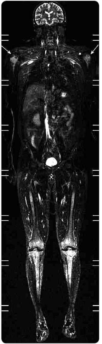 Celotělové MR vyšetření ve STI R zobrazení (typ saturace tukové tkáně) a koronární rovině. Při saturaci signálu z tukové tkáně dobře vyniká abnormální signál ve výše popsaných oblastech, a to velmi dobře i v obou humerech (šipky). I zde se jedná o přímé zobrazení nakumulovaných histiocytů, jejichž vyšší signál je dobře diferencovatelný od normální kostní dřeně.