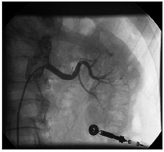 Angiografie levé renální tepny po implantaci stentu