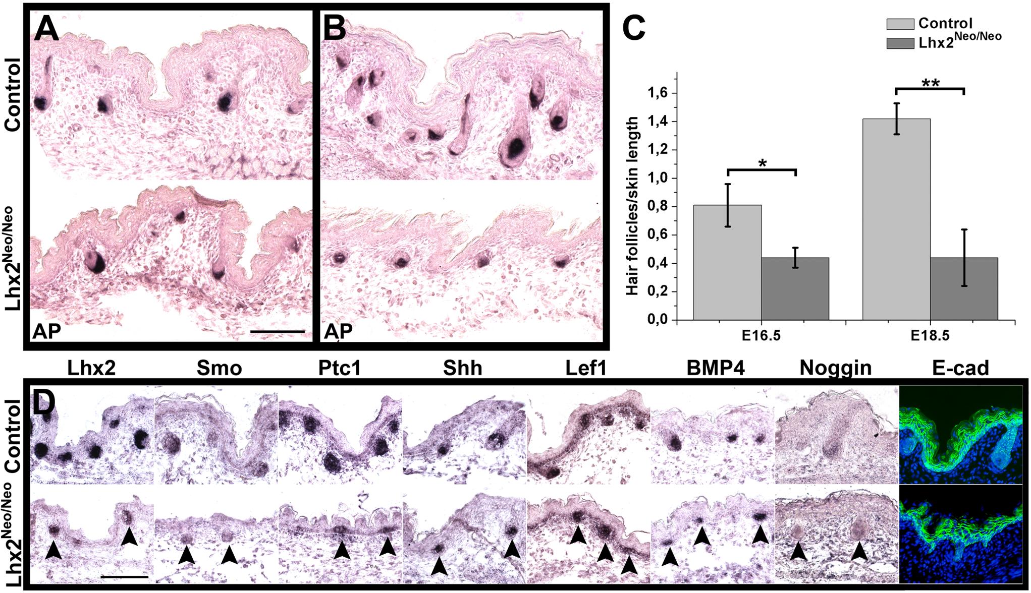 Reduced expression of Lhx2 hampers HF morphogenesis.