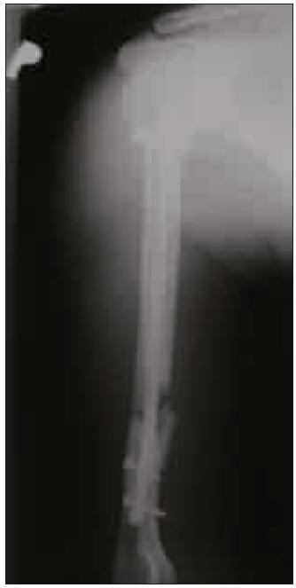Rentgenový snímek pravé pažní kosti po zajištěném hřebování.