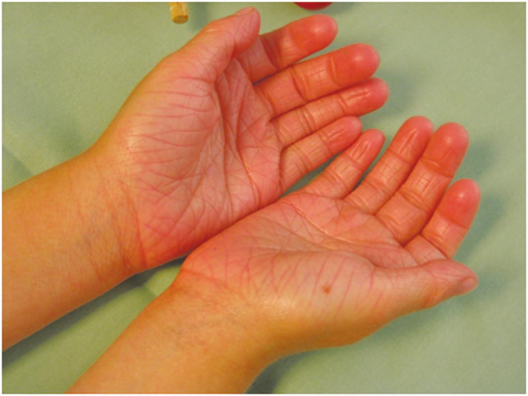 Ichthyosis vulgaris – hyperlinearita dlaní