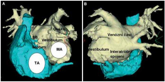 Anatomie levé srdeční síně.