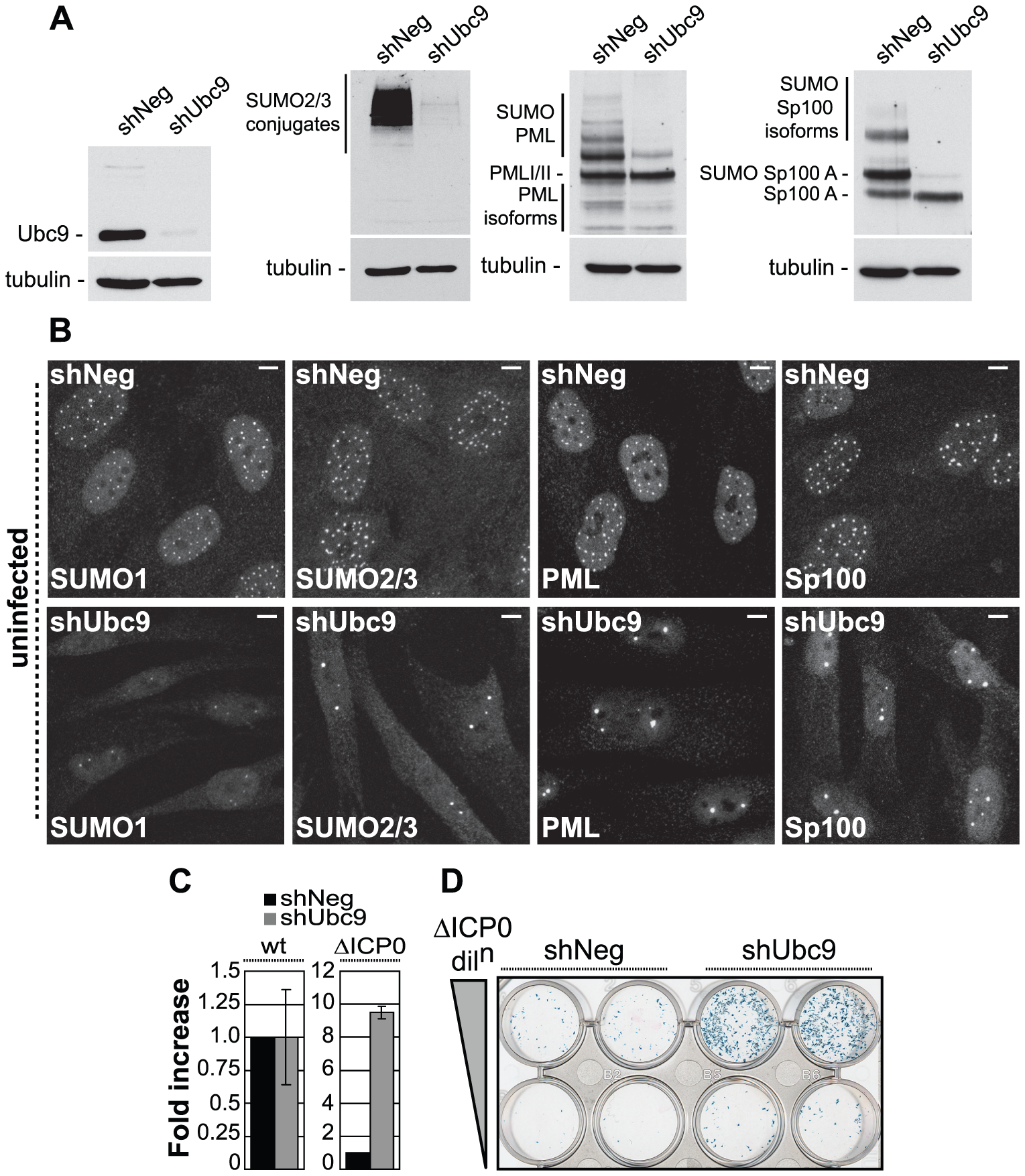 The SUMO pathway contributes to intrinsic antiviral resistance to HSV-1 infection.