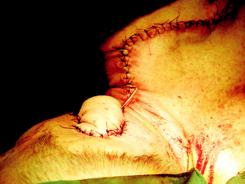Umiestenie laloka a jeho sutúra v defekte. Sutúra donorského miesta na chrbte.