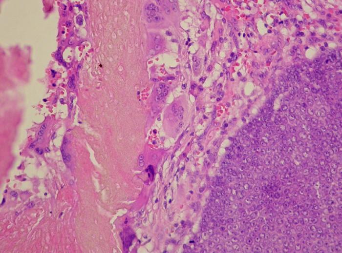 Histologický obraz pilomatricomu. Vpravo na preparátu je vidět bazaloidní tmavě zbarvený epitel. V levé polovině obrázku žlutorůžově zbarvená matrikální diferenciace, v jejímž okolí směrem vpravo do periferie je patrná obrovská buněčná reakce (buňky s mnoha jádry) a s několika kalcifikacemi (zrnitě fialové barvy).