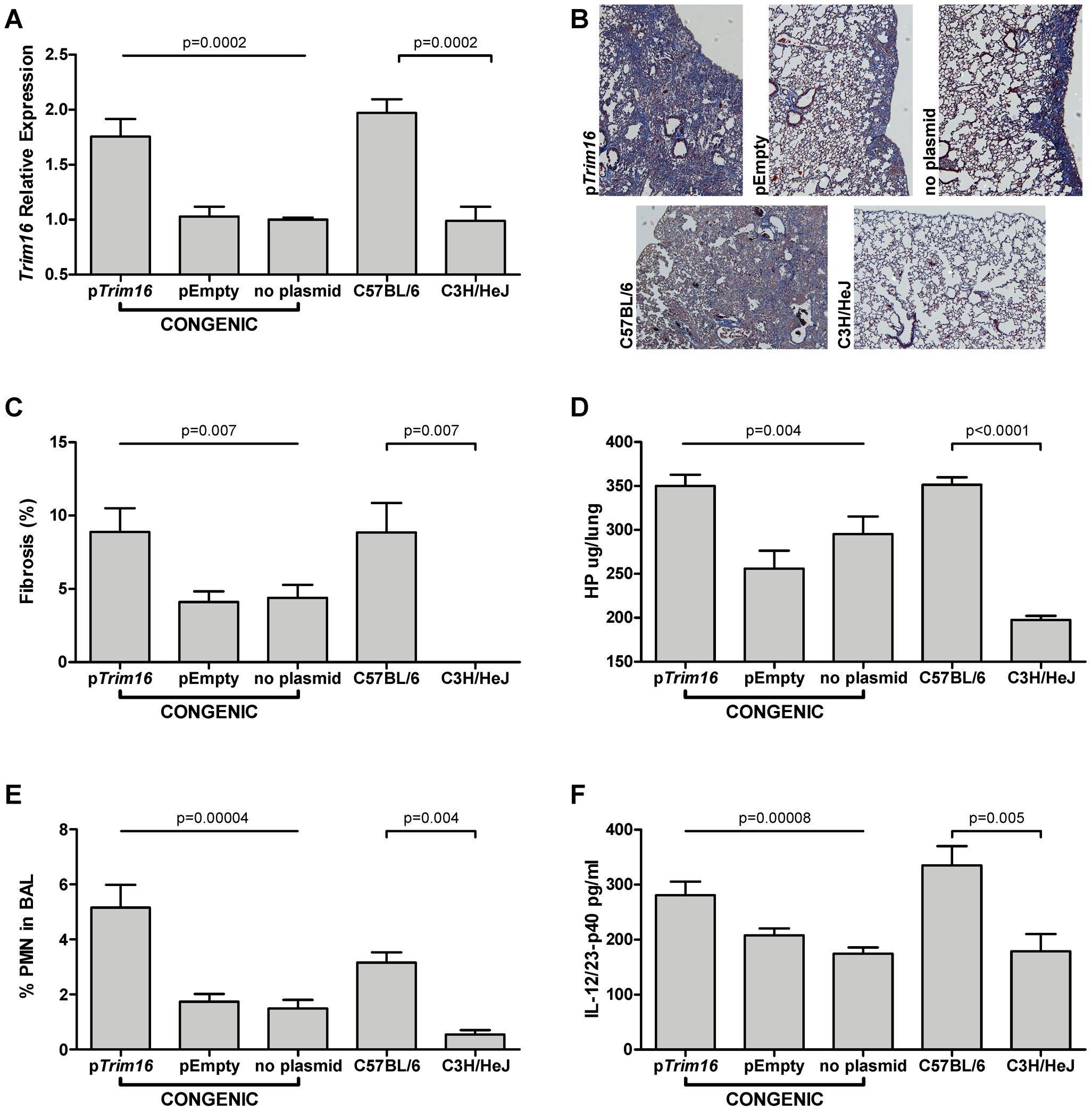 <i>Trim16</i> over-expression increases pulmonary fibrosis in <i>Blmpf2</i> subcongenic mice.