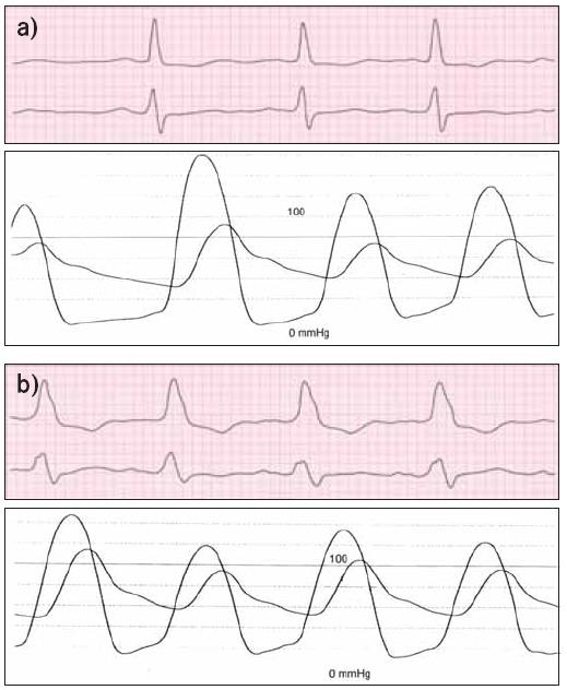 Katétrová balonková valvuloplastika u pacienta s aortální stenózou vedla k podstatnému snížení tlakového gradientu. (a) Před valvuloplastikou byl vrcholový systolický gradient mezi aortou a levou komorou 55–75 mmHg, (b) po valvuloplastice se snížil na zhruba 30 mmHg.
