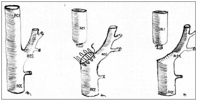 """Chirurgické řešení """"stumpu"""" podvazem vnitřní krkavice a plastikou pahýlu."""