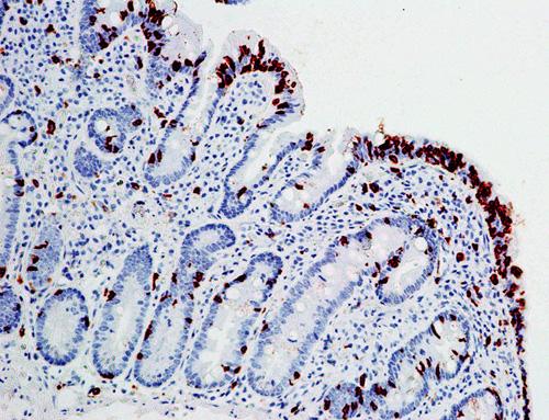 CD8 pozitivní intraepiteliální lymfocyty