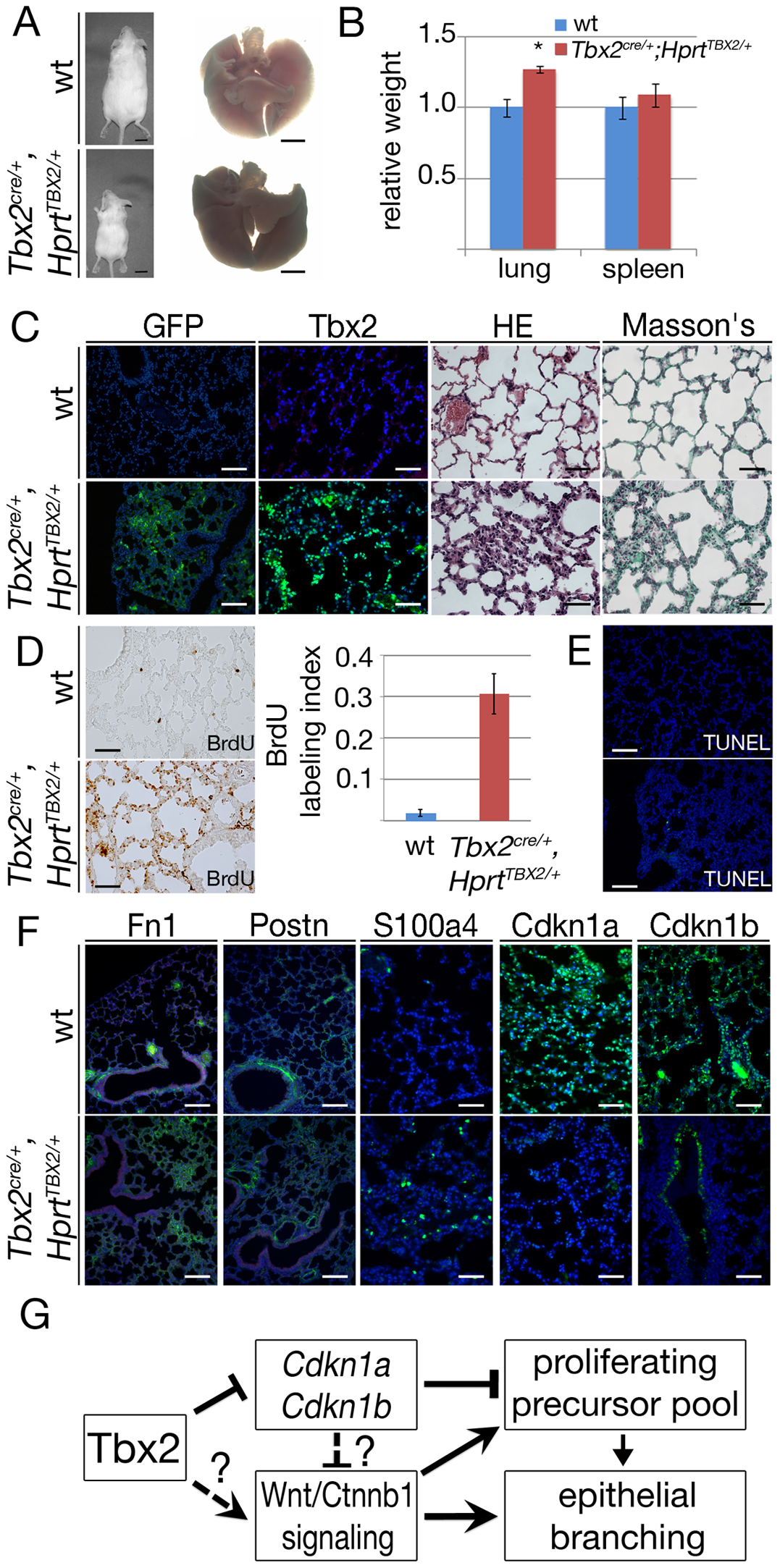 Prolonged expression of TBX2 maintains proliferation of mesenchymal progenitor cells in the adult lung.