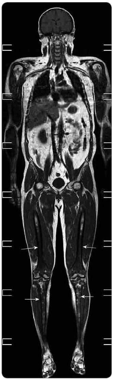 Celotělové MR vyšetření v T1 váženém obraze a koronární rovině. Patrný je abnormálně snížený signál z kostní dřeně s maximem v oblasti obou femurů a tibií (šipky) oboustranně. Nehomogenity jsou přítomné i v proximálních metafýzách obou humerů. Jedná se o obraz kumulace abnormálních histiocytů, které tak nahrazují normální tukovou kostní dřeň a působí snížení signálu v T1 obrazech.