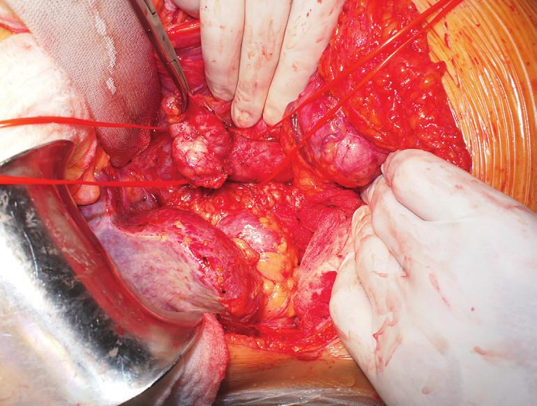 Vypreparovaný tumor a obejitá v. cava inf. nad a pod ním Fig. 5: Tumor invading inferior caval vein
