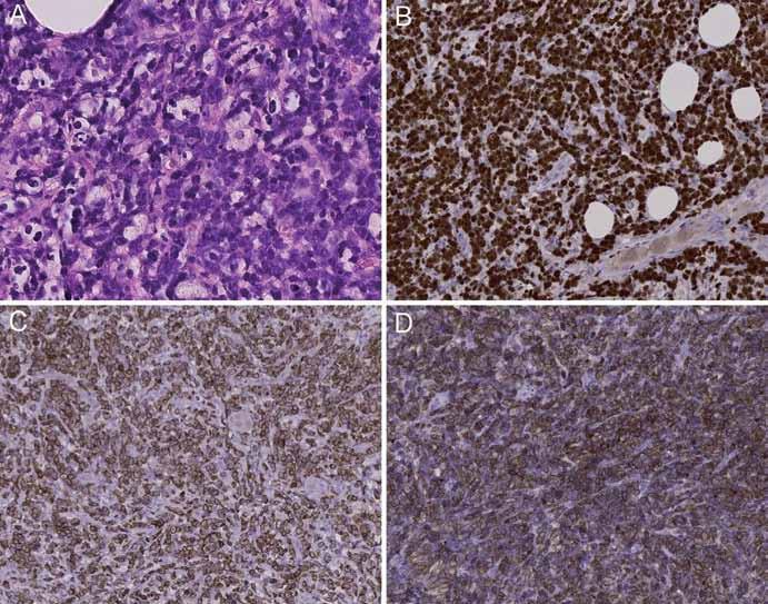 Nádorová tkáň prezentovaného případu vykazuje morfologické a imunofenotypické znaky jak Burkittova lymfomu, tak difúzního velkobuněčného B lymfomu. Je tvořena mírně polymorfní populací středně velkých a velkých buněk převážně centroblastického vzhledu, úsekovitě je naznačen obraz hvězdného nebe (A); nádorové buňky vykazují proliferační aktivitu 90–100 % dle Ki67 (B), difuzní silnou pozitivitu BCL-2 (C) a CD79a (D).