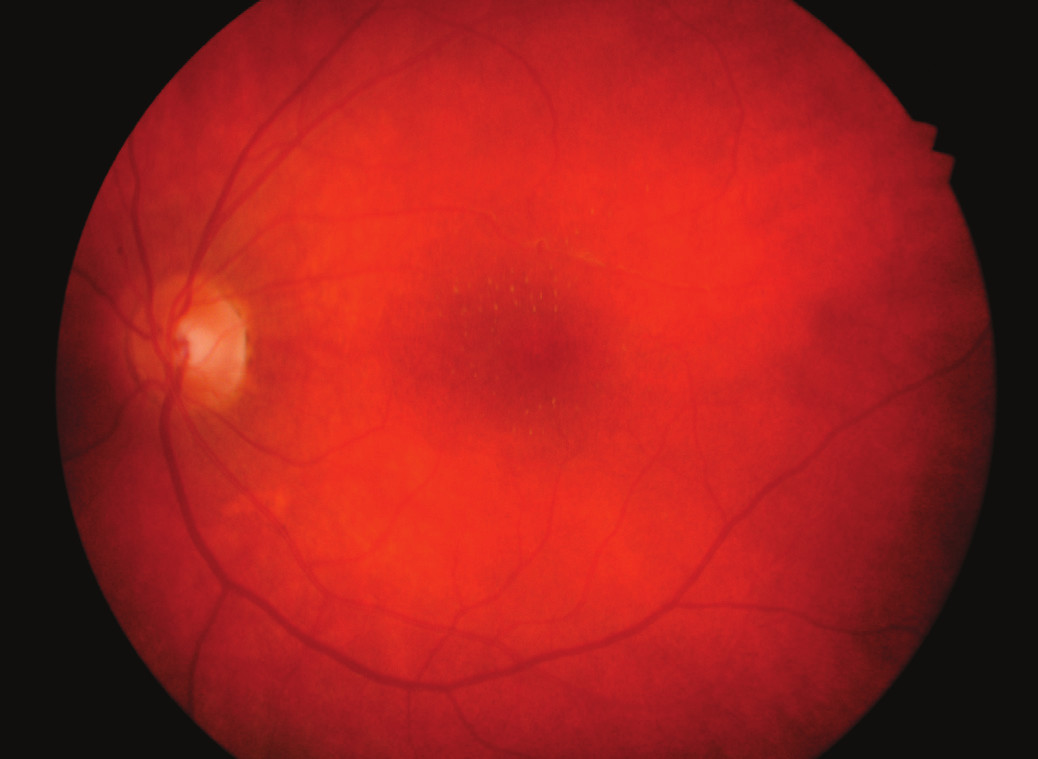 Hvězdicová makulopatie levého oka měsíc po léčbě