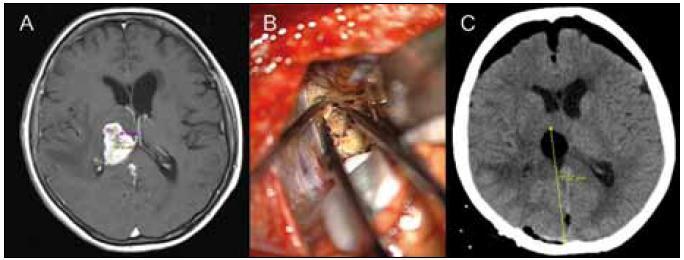 Obrazová dokumentace pacientky s metastázou thalamu. Obr. 2a) Předoperační MR T1W s k.l. Obr. 2b) Fotografie z operace. Obr. 2c) Kontrolní CT první pooperační den.