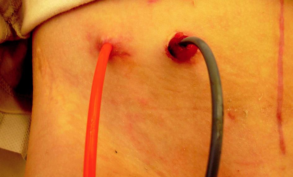 Obr. 3. Obě stomata po zhojení Fig. 3. Both stomas – healed