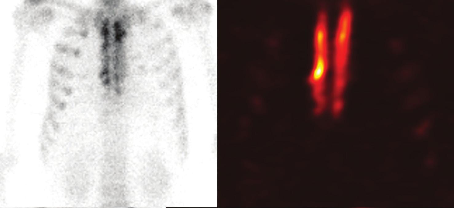 Celotělová planární scintigrafie (A) a SPECT (B) hrudní stěny 18 měsíců po transplantaci kostního štěpu sterna Fig. 3: Whole-body planar scitigraphy (A) and SPECT (B) 18 months after the transplantation of the sternal bone graft