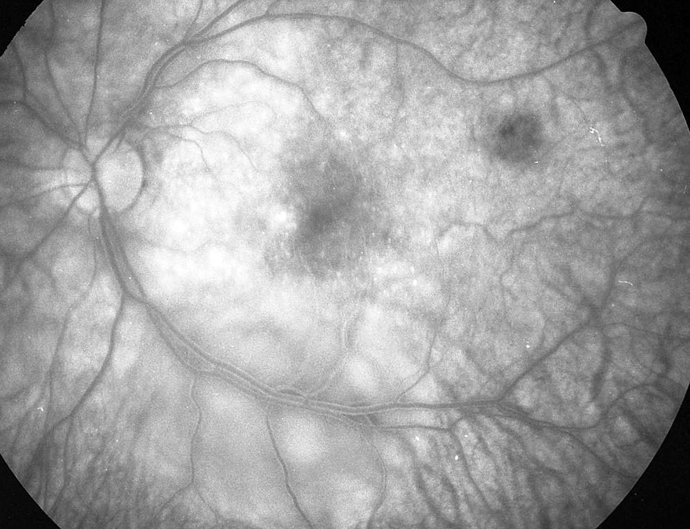 Pac. č. 2: Fluoresceínová angiografia ĽO: rozsiahla oválna ablácia neuroepitelu retiny popri dolnom temporálnom cievnom zväzku