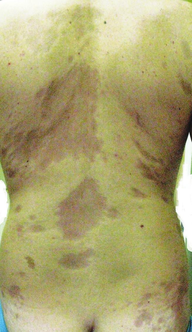 Atrophodermia idiopathica