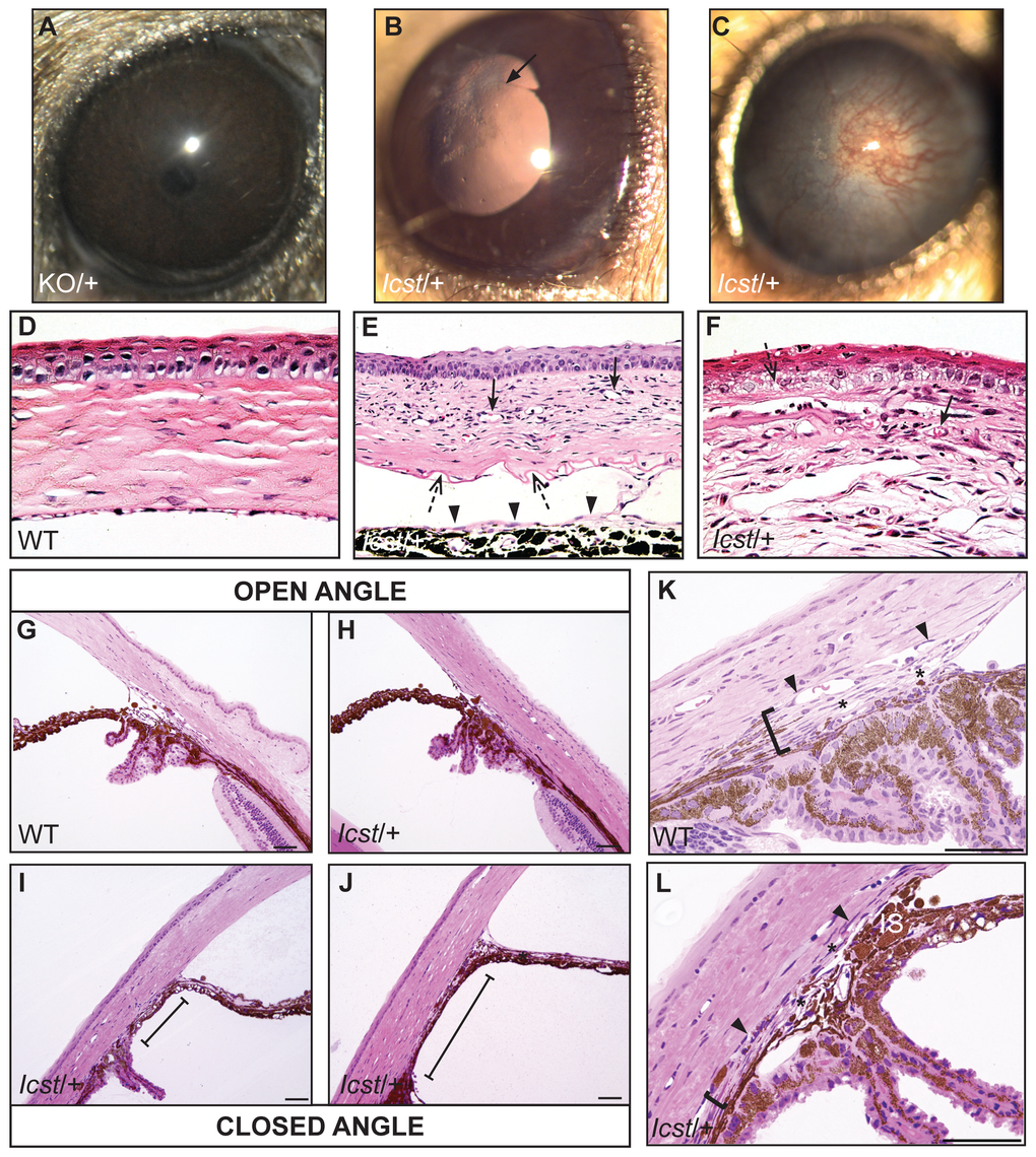 <i>Icst</i> causes defects in the anterior segment of the eye.