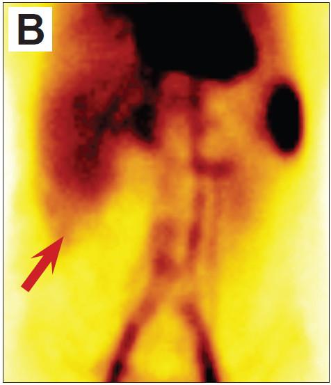 Dynamická scintigrafie započatá současně s aplikací v předním pohledu. Oblast hemangiomu je překryta játry, hemangiom se zobrazuje pouze v malé oblasti subhepatálně (šipka). A (vlevo) Součet obrazů v první minutě po aplikaci. Není patrný zvýšený krevní průtok v místě hemangiomu. B (vpravo) Součet obrazů v posledních 10 minutách (50.–60. minuta po aplikaci). Je patrná zvýšená akumulace radiofarmaka v oblasti hemangiomu.