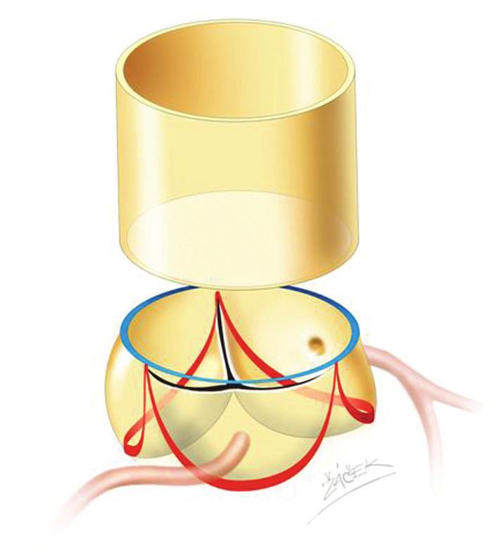 Schéma aortálního kořene. Červená linka označuje úpon aortální chlopně. Modrá linka označuje sinotubulární junkci.