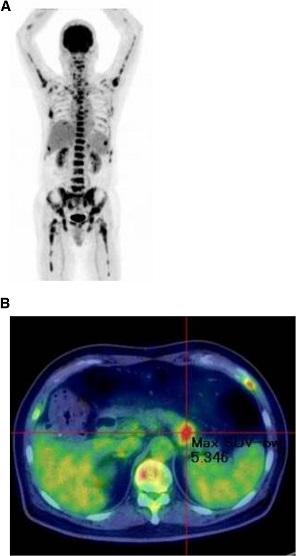 PET-CT studies. a: Diffuse skeletal uptake; b: Abnormal uptake in the tail of the pancreas