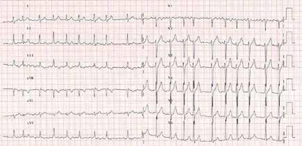 EKG obraz fibrilace síní