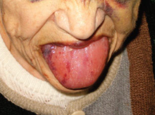 Vlevo obraz jazyka při AL amyloidóze s krvácivými projevy a vpravo jazyk zvětšený depozity amyloidu s impresemi zubů na kraji jazyka.