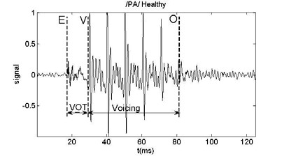 Fig. 1: One labeled syllable recorded from a healthy participant.