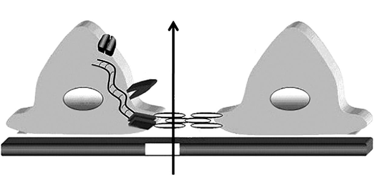 """Schéma štruktúry štrbinovej membrány a pedicel podocytov. Proteíny TRCP6, ACTN4, CD2AP a podocín sú kľúčovými """"podpornými"""" molekulami štrbinovej membrány tvorenej molekulami nefrínu oboch susediacich pedicel podocytov. Legenda: SM – štrbinová membrána, GBM – glomerulová bazálna membrána,  TRPC6 – tranzientný kationový kanál receptorového potenciálu,ACTN4 – alfa aktinín 4,  CD2AP – CD2 asociovaný proteín,WT1 –Wilmsov tumor proteín 1. Podľa: Johnstone DB, Holzman LB. Clinical impact of research on the podocyte slit diaphragm. Nat. Clin. Pract. Nephrol. 2006;2(5): 271–282."""