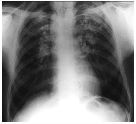 Obr. 7. Komplikovaná silikóza