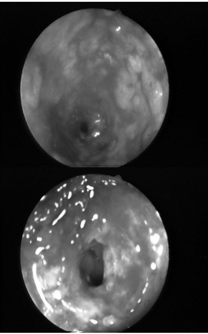 a, b. Endoskopický nález. Pohled do těsné stenózy rektosigmoideálního přechodu, ulcerace, krvácení. Fig. 1a, b. Endoscopic finding. A view of narrow stenosis of rectosigmoid transition, ulceration, bleeding.