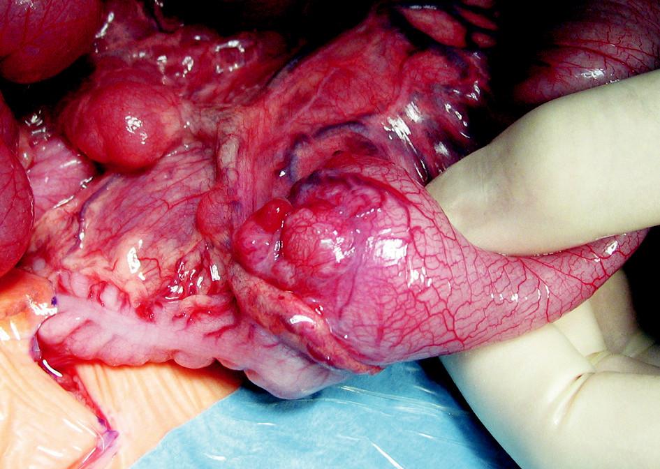 Peroperačný obraz dilatovaného ilea a hypoplastického colon s palpovateľným intraluminálnym tumorom v ileocekálnej oblasti Fig. 3. Peroperative view of dilatation of the ileum and hypoplastic colon with a palpable intraluminary tumor in the ileocecal region