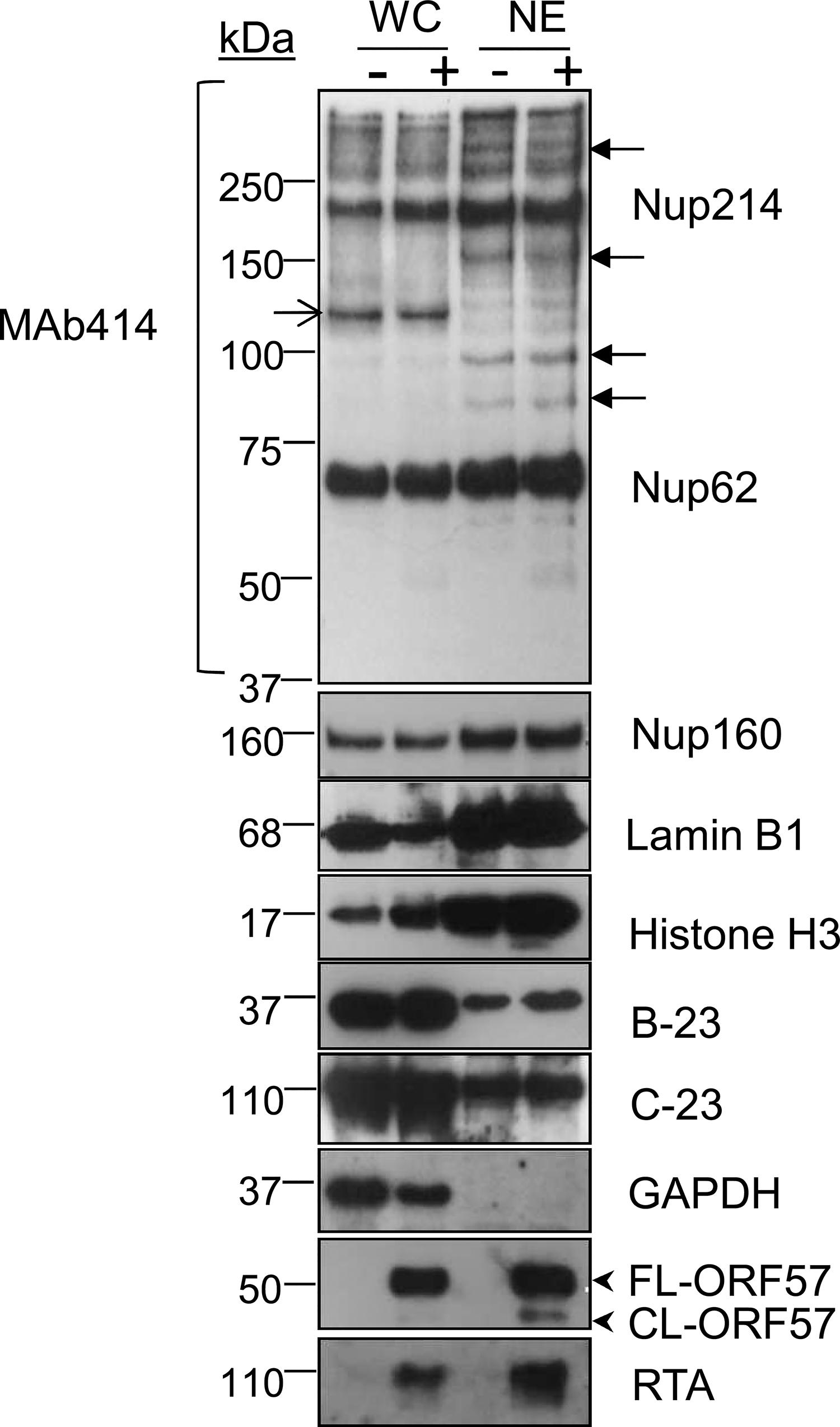 Successful enrichment of the nuclear envelope region and associated KSHV RTCs in HEK-293T rKSHV.219 cells.