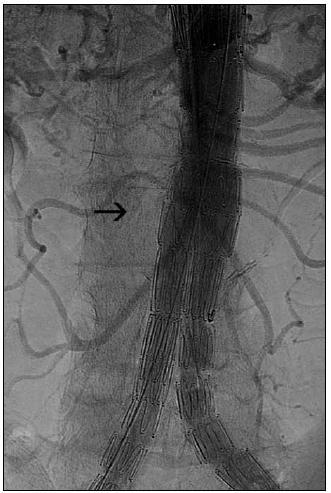 Obr. 4b. Stav po léčbě pomocí implantace bifurkačního stentgraftu. Na angiografii jsou patrna kovová vlákna stentgraftu a průchodné lumen aorty bez výdutě (před léčbou přítomna v místě označeném šipkou).