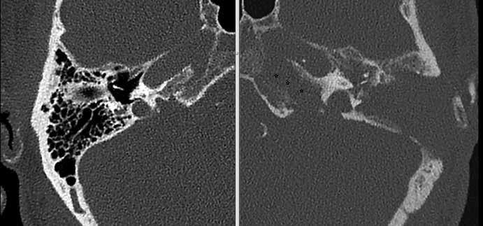 Kazuistika 1 – CT spánkových kostí axiální řezy, stav po antromastoidektomii vlevo. Osteolytické změny hrotu pyramidy (hvězdičky).