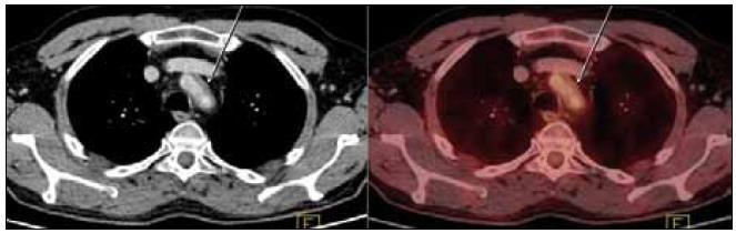 PET-CT zobrazení hrudníku. Zesílení stěny hrudní aorty v úrovni jejího oblouku na šíři 5 mm (označeno šipkami). Evidentní hypermetabolizmus glukózy neprokázán.