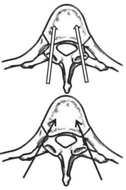 Schematické znázornění transpedikulárního (nevyplněné šipky) a latero-extrapedikulárního přístupu (černé plné šipky) k vertebroplastice v hrudní páteři.