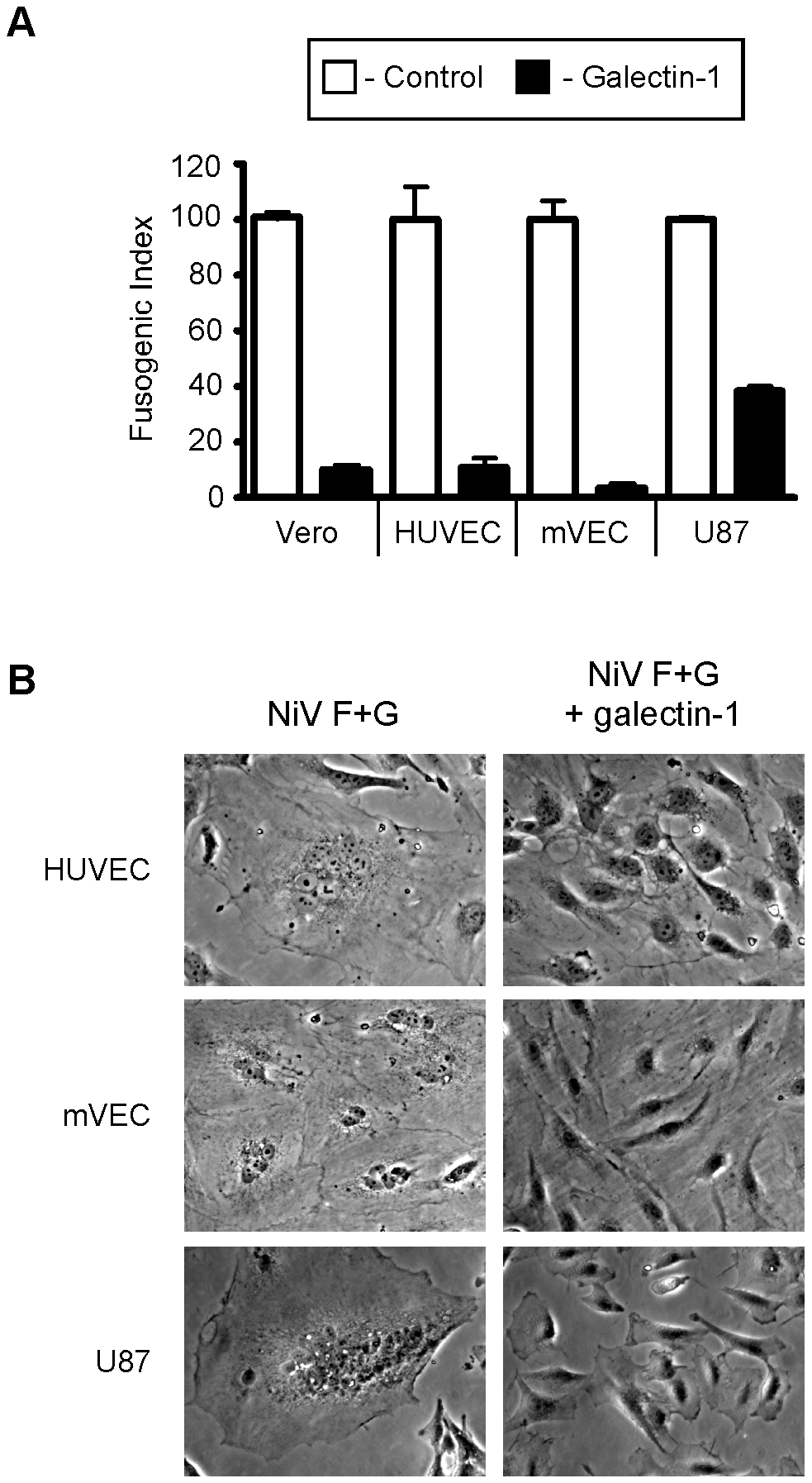 Galectin-1 blocks NiV-F and G mediated syncytia formation of endothelial and glial cells.