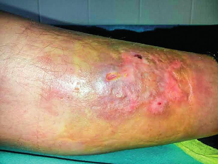 Necrobiosis lipoidica – nežiaduci účinok na koži predkolenia, ktorý vznikol v priebehu liečby IFN-α u 52-ročnej pacientky s polycytémiou vera