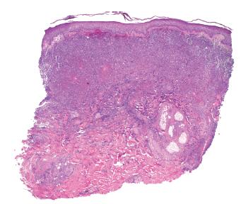 Obr. 3a. V probatorní excizi dominuje masivní infiltrace neutrofilními granulocyty v téměř celé šíři koria